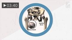 Dysbaric Osteonecrosis (Spanish)