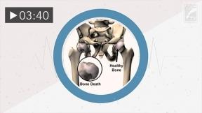 Dysbaric Osteonecrosis (Spanish Subtitles)